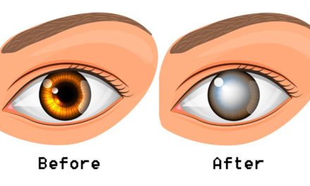 What Causes Blindness?   Everyday Health