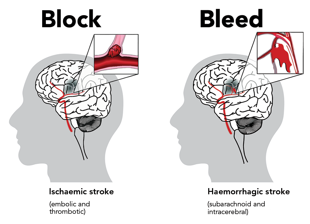 What Are The Main Causes Of Stroke